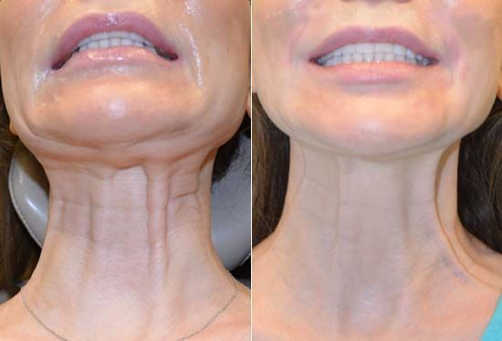 Before and After Botox Injections in Platysmal Bands