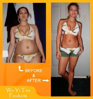 Extreme makeover weightloss edition before and after pictures