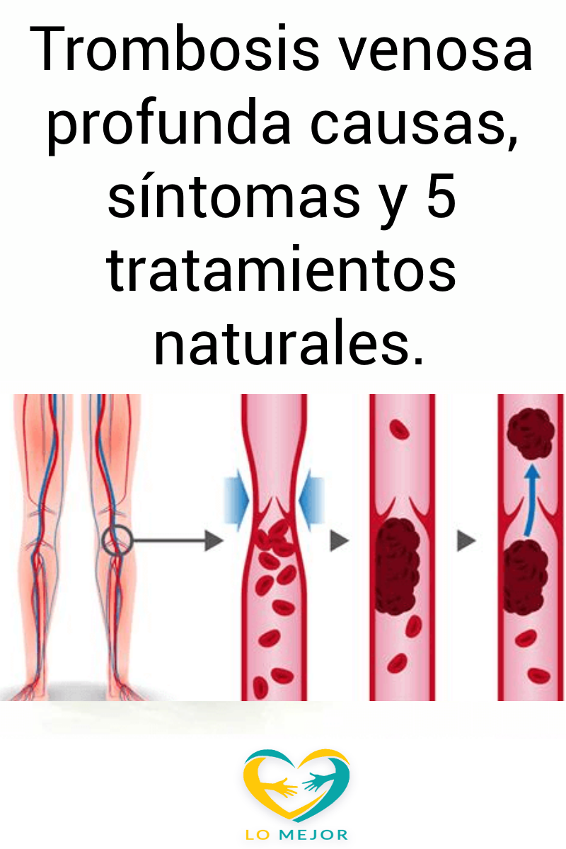 tromboflebitis profunda tratamiento