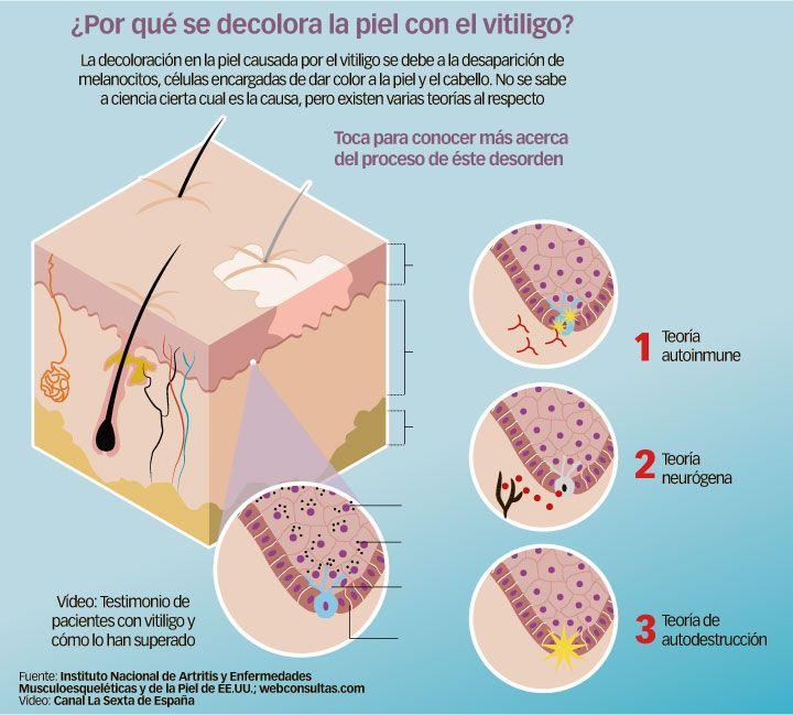enfermedad de decoloración de la piel