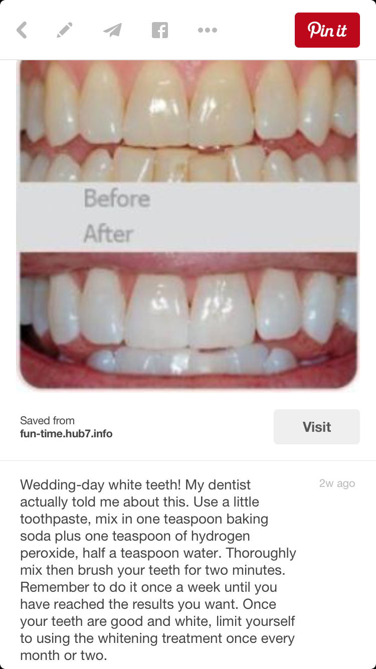 Whiten Teeth Dentist My Dentist Baking Soda
