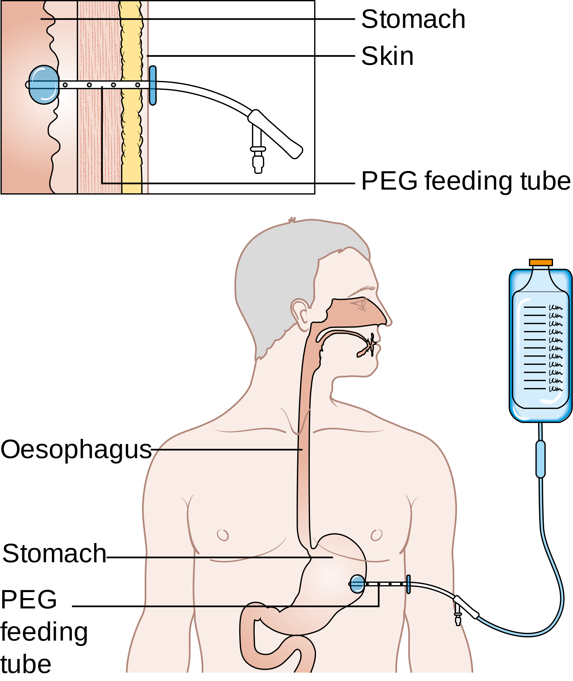 External view of the inserted gastrostomy catheter