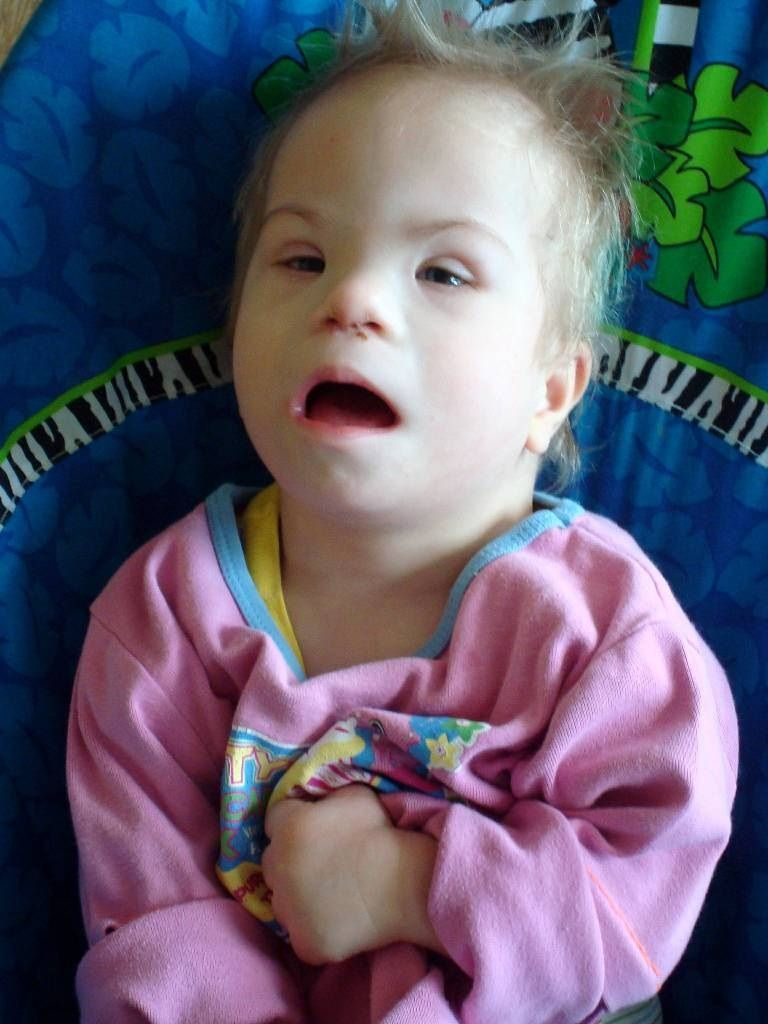 Baby With Fetal Alcohol Syndrome And Down Syndrome Special Needs