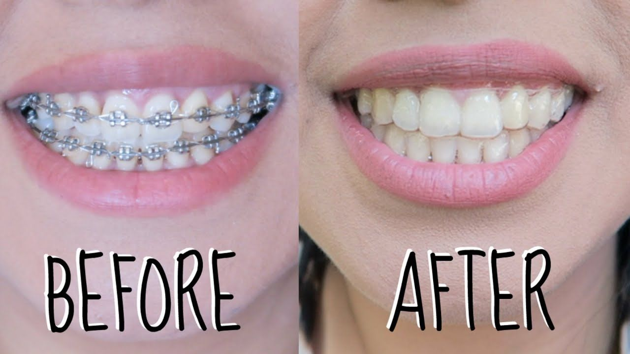 Braces Before and After Overbite Causes, Symptoms