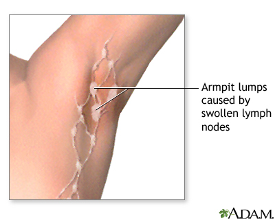 Swollen Lymph Nodes Under Arm Swollen Lymph Nodes Lymph Nodes Lymph Glands