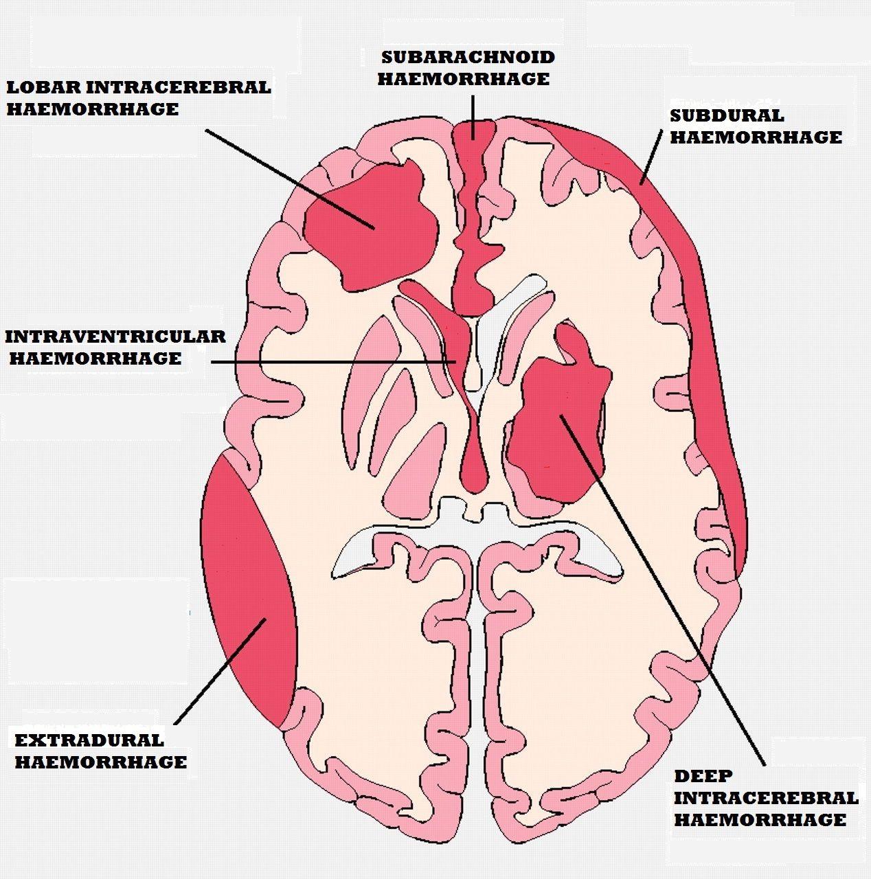 Subdural haemorrhage (SDH) subarachnoid haemorrhage - Google Search ...