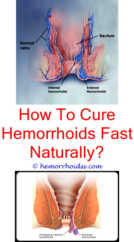 5 Radiant Tricks: Can Blood In Your Stool Be Caused By Hemorrhoids