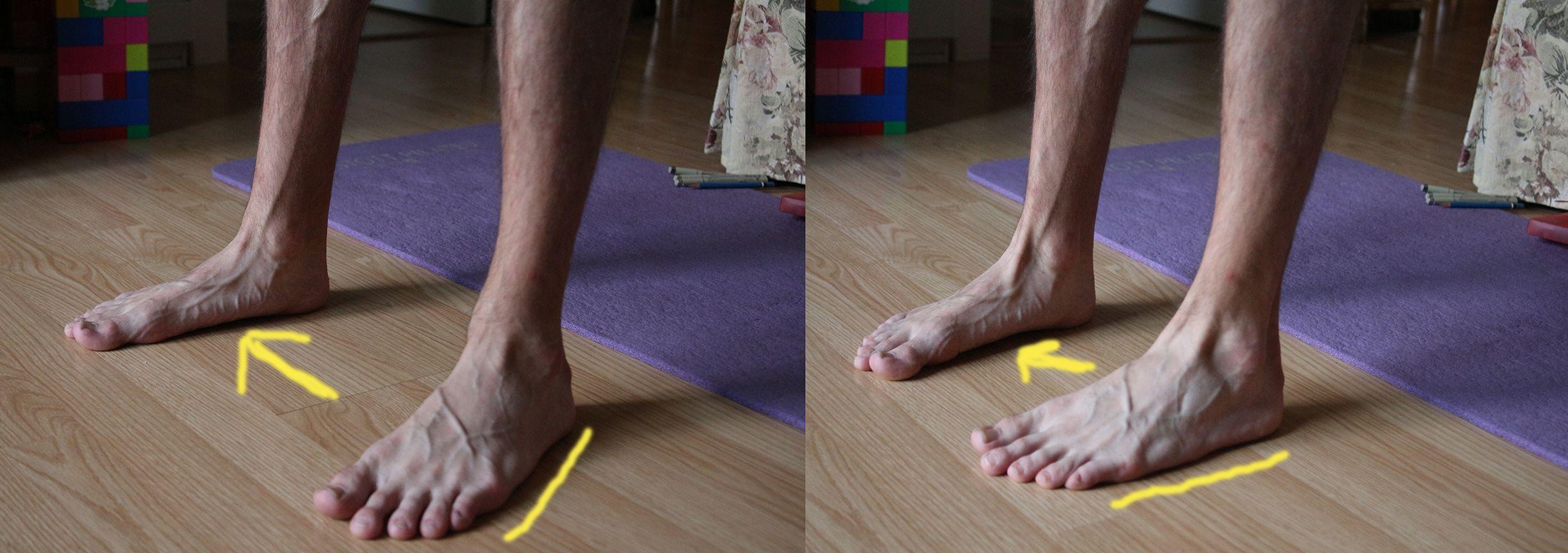 Fixing flat feet in a second literally flat feet