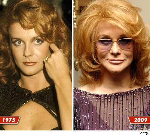 Chatter Busy Ann Margret Plastic Surgery Before Amp After
