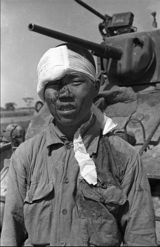 Scene In China Civil War 1949 Nationalist Soldiers Wounded