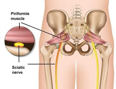 pin on hip bursitis