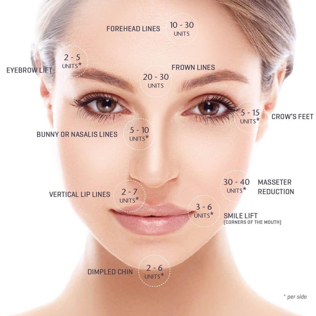 sydney botox unit pricing | Botox in 2019 | Botox injection