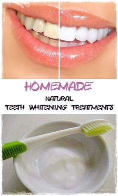Natural Teeth Whitening Treatments. Tips for getting your teeth whiter