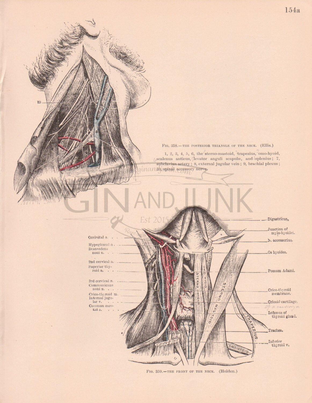 Antique Medical Lithograph Antique Human Neck Print 1898