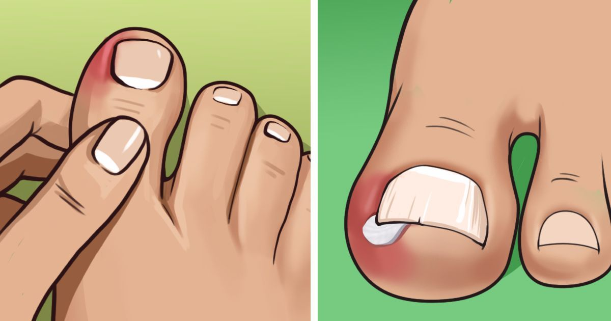 e0c693df4a6940cf33585da50d831e30 - How Do You Get An Ingrown Toenail To Stop Hurting
