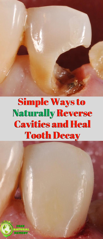 healing cavities keto diet