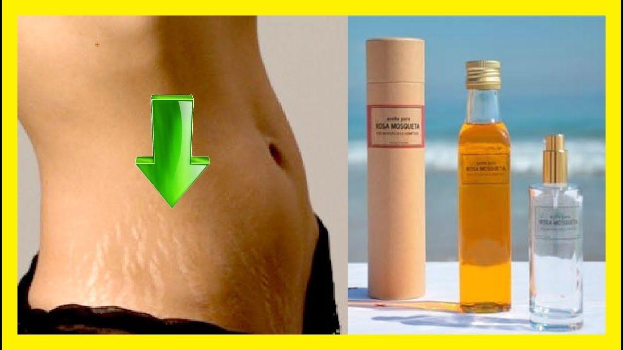propiedades del aceite de rosa mosqueta para las estrias