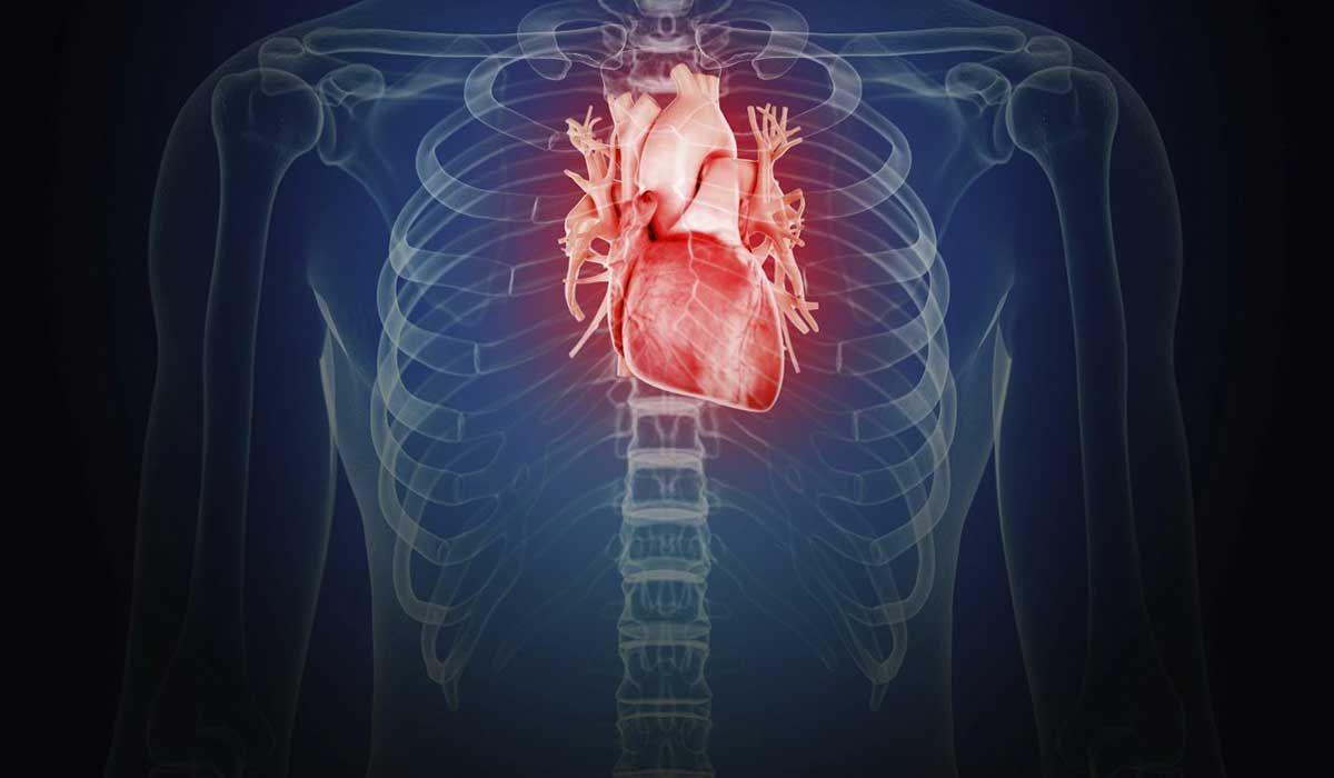أعراض شحنات القلب Neon Signs Signs Neon