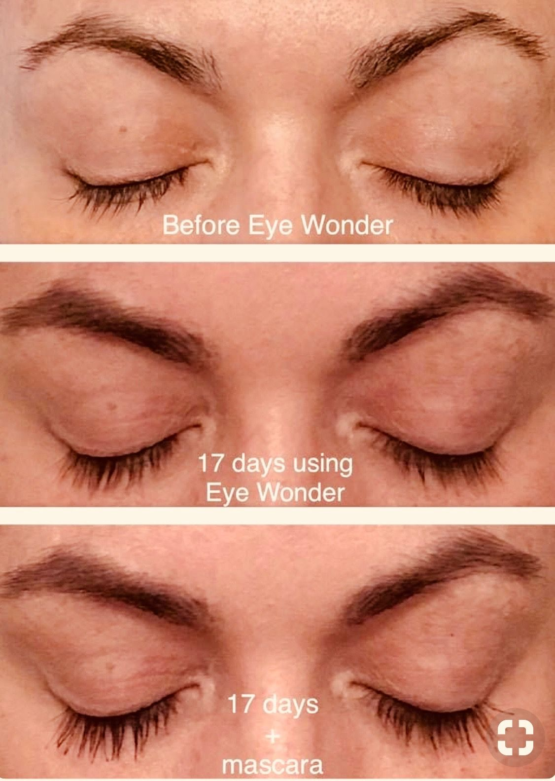 ab8096080bd Eye Wonder is a high-performance serum formulated with clinically proven  ingredients such as Capixyl