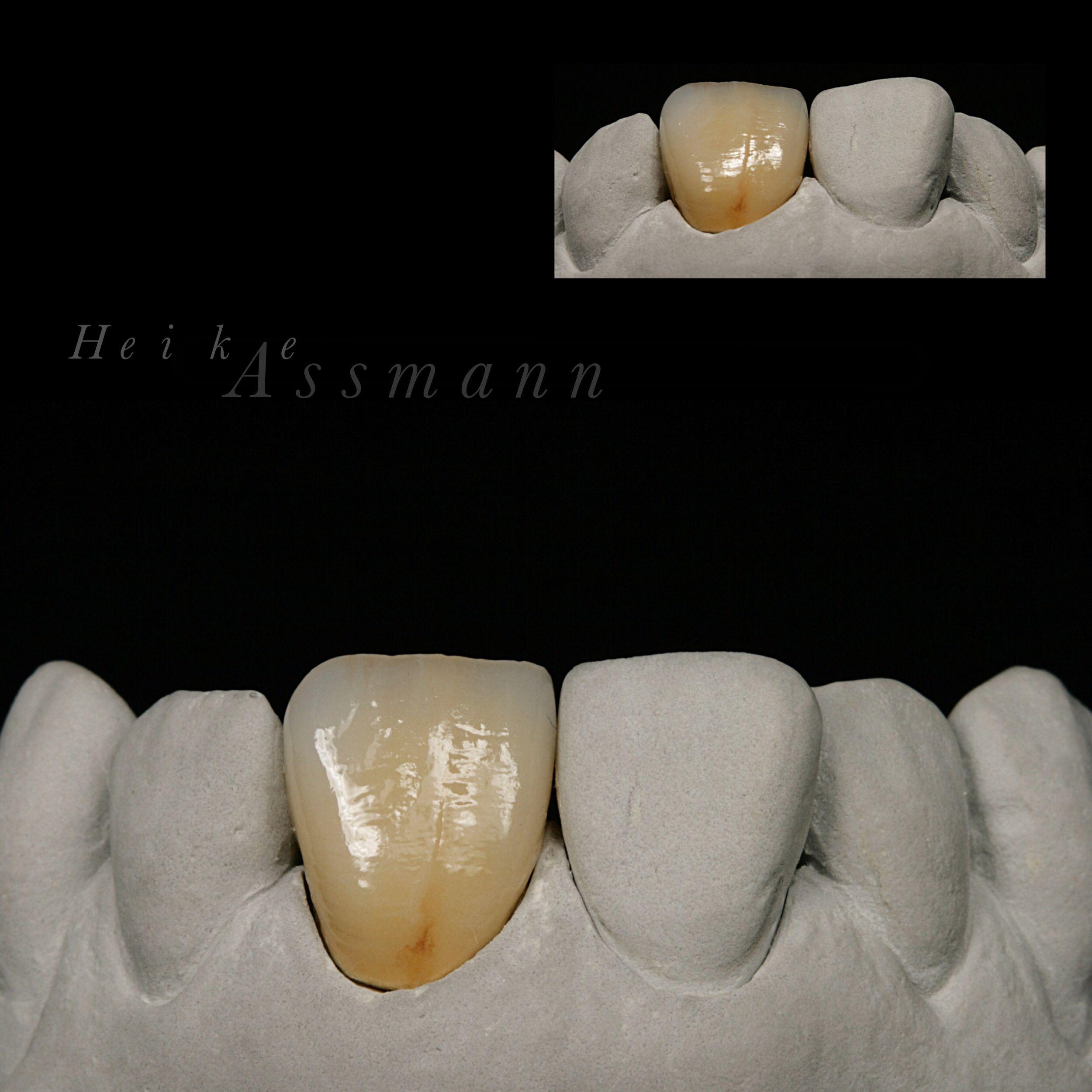 Metal Ceramic Zahntechnik By Heike Assmann Em 2020 Protese Dentaria Dentes Anteriores Dentes