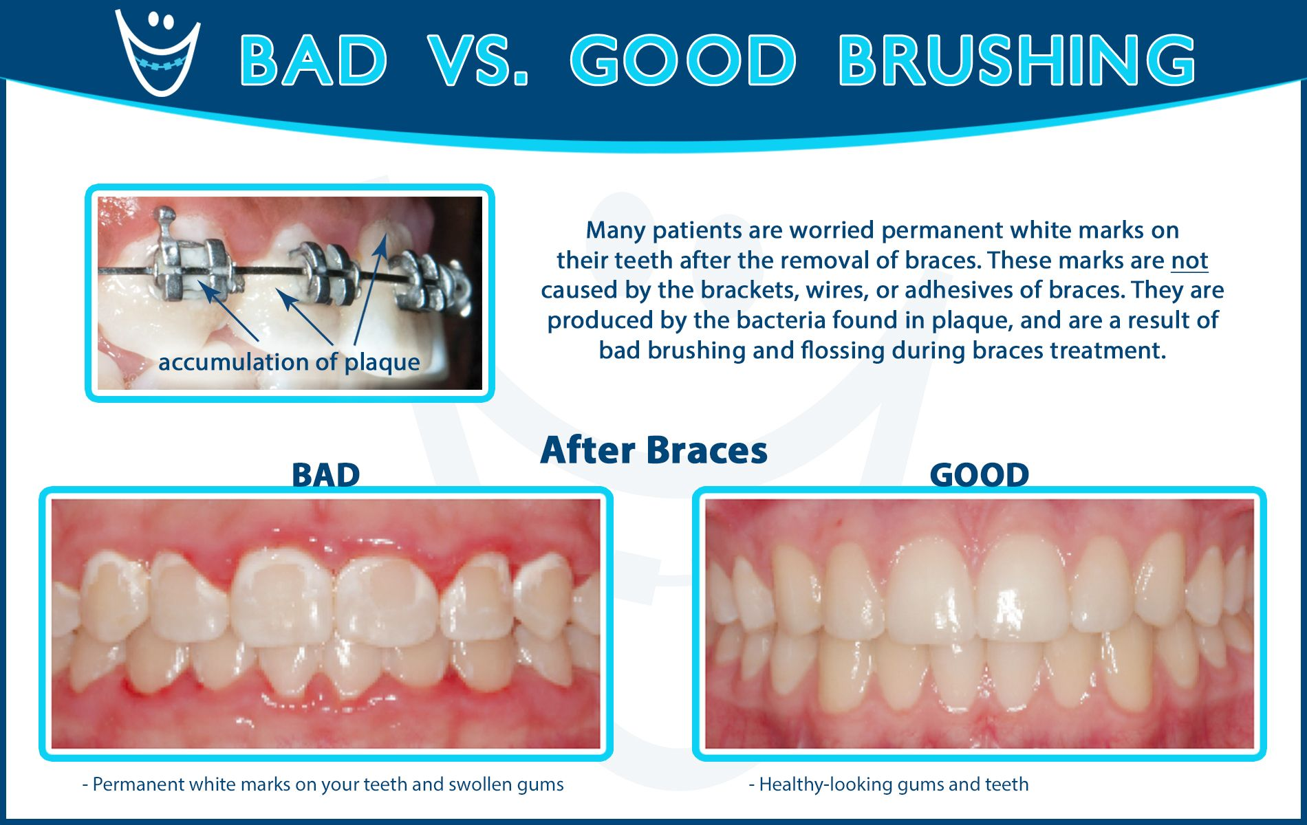 Good brushing and flossing is a VERY important part of