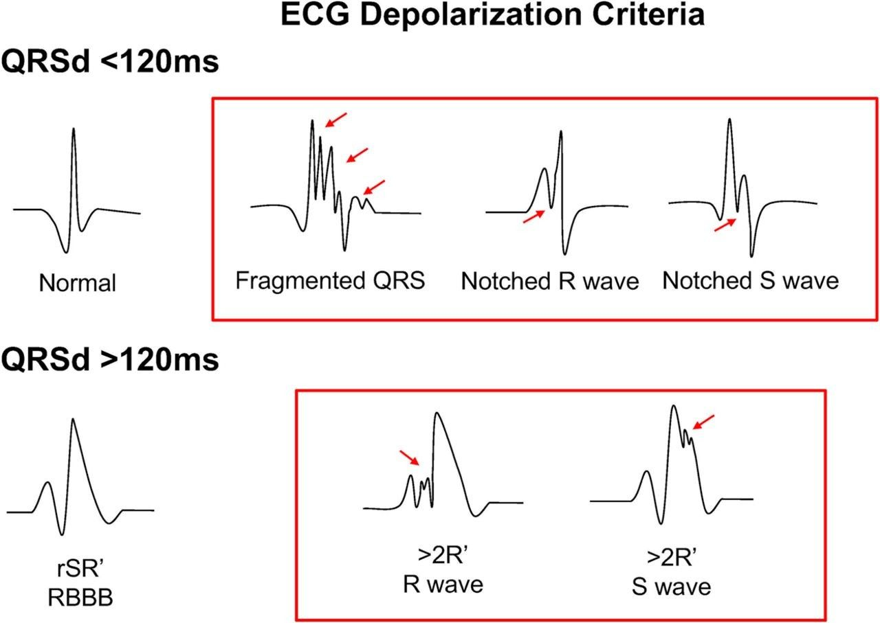 12 Lead Electrocardiogram To Localize Region Of Abnormal
