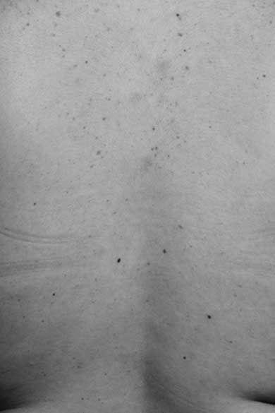 Santiago Sierra: Estudio económico de piel