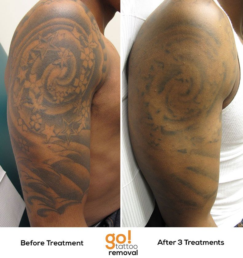 After 3 Laser Tattoo Removal Treatments There Is Significant Fading On This Black And Grey Tattoo Grey Wash Laser Tattoo Sleeve Tattoos Laser Tattoo Removal
