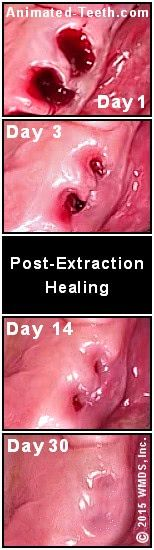 Pictures Showing Progress Of Tooth Extraction Site Healing Over Time Tooth Extraction Healing Tooth Extraction Tooth Extraction Aftercare