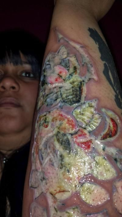 Tattoo Infection Infected Tattoo Best 3d Tattoos Tattoo Designs