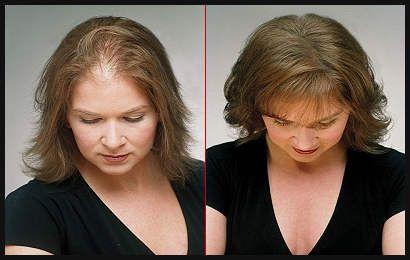 Dunnes Haar Frisuren Vorher Nachher Einfache Frisuren Neue