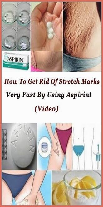 Health: How To Get Rid Of Stretch Marks Very Fast