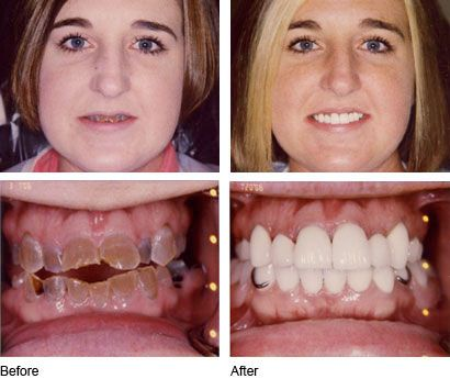 10 Before And After Dental Care Photos Prove Good Teeth ...