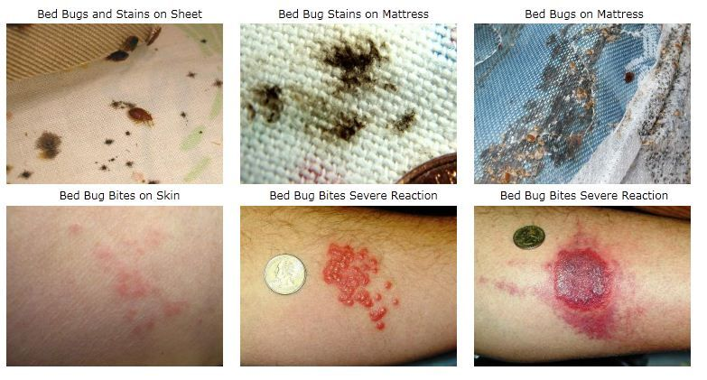 Bed Bugs Bed Bug Bites Bed Bugs