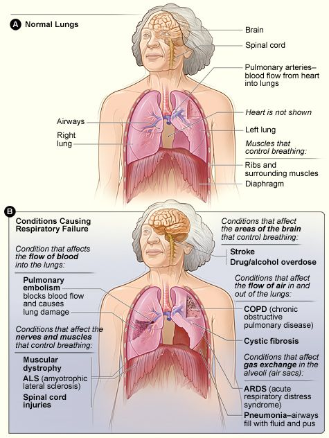 figure a shows the location of the lungs, airways, diaphragm, rib cage,  pulmonary arteries, brain, and spinal cord in the body