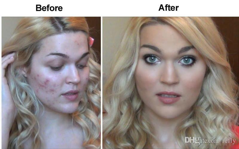 Park Art|My WordPress Blog_Does Insurance Cover Dermatology For Acne