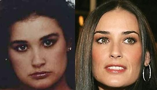 Demi Moore before and after plastic surgery | Photoshop + makeup ...