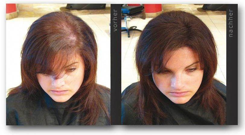Say goodbye to thinning hair!!! thinninghair Hair loss