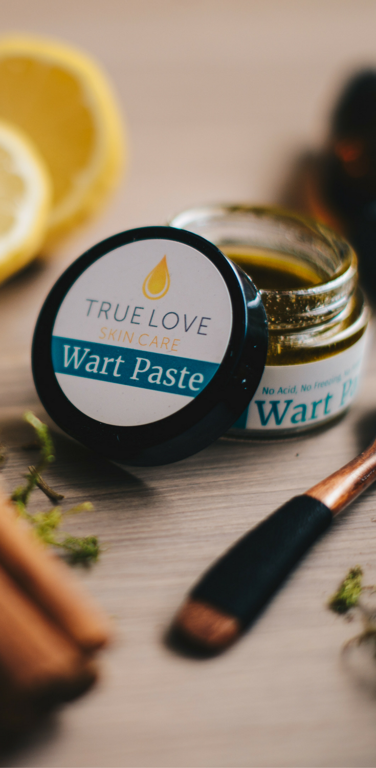 Wart Paste from True Love Skin Care  Natural wart remover, natural