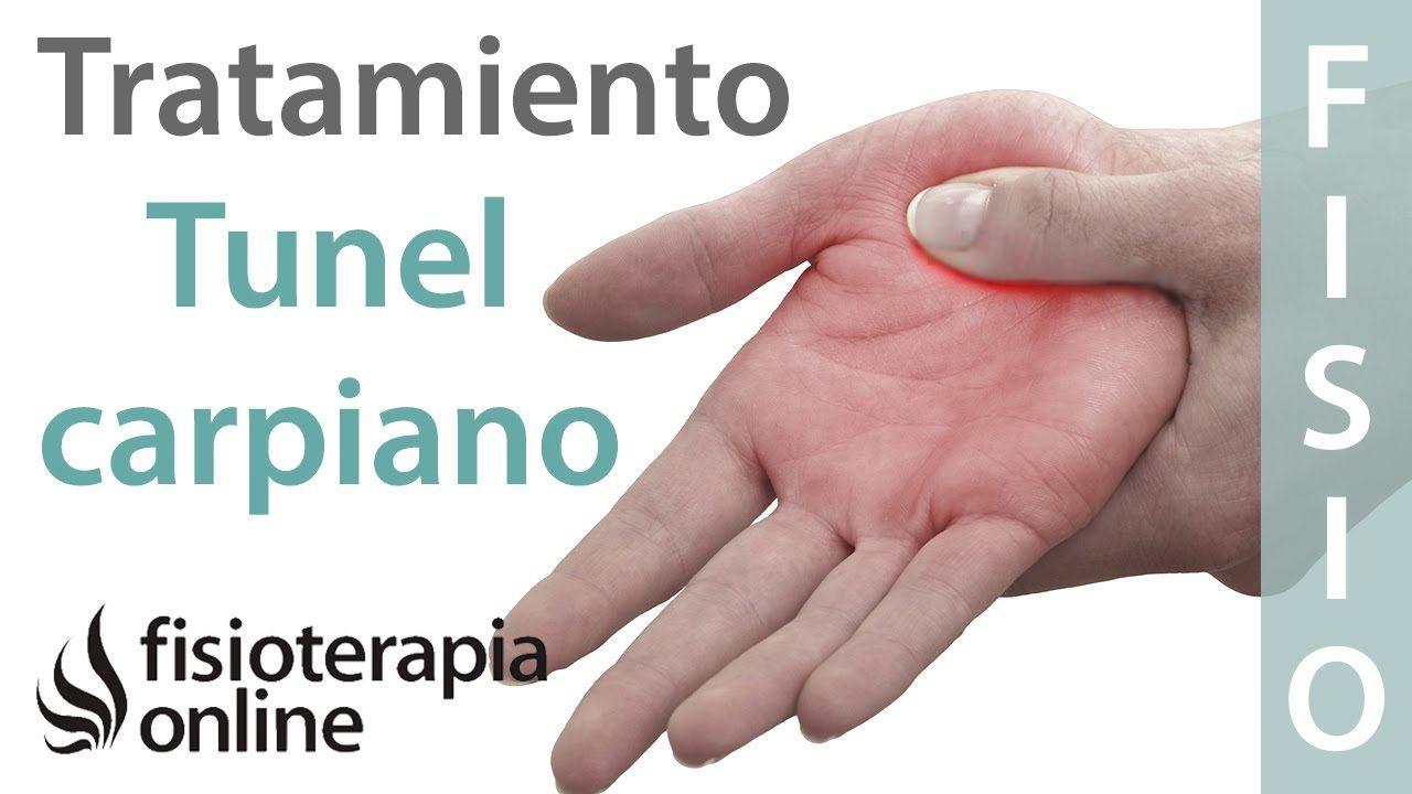 Tratamiento del síndrome de túnel carpiano derecho | anatomia ...