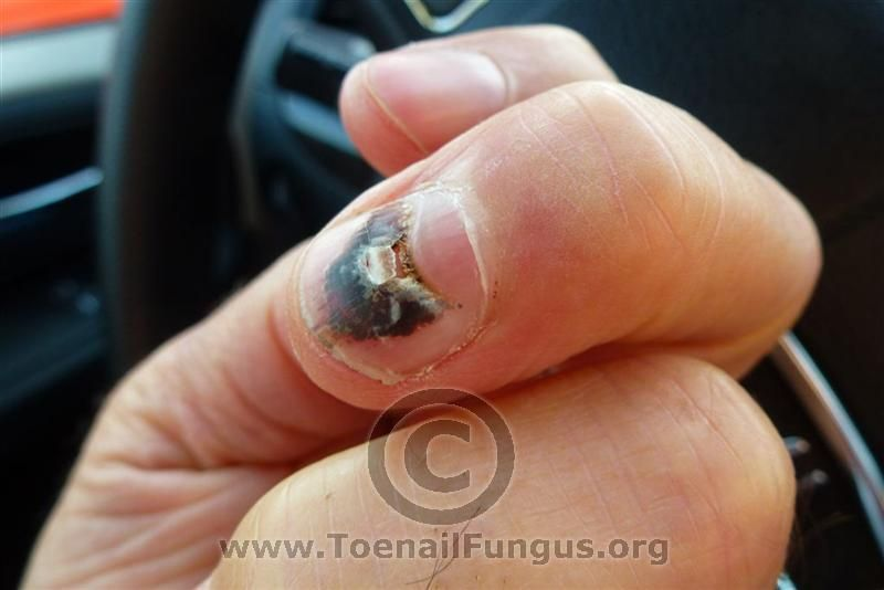Nail Fungus Pictures Fingers You can get more information about nail ...