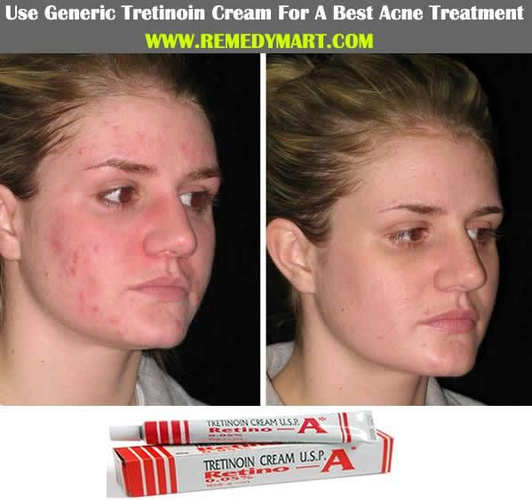 All About Tretinoin Cream And Its Effective Uses Vinegar For