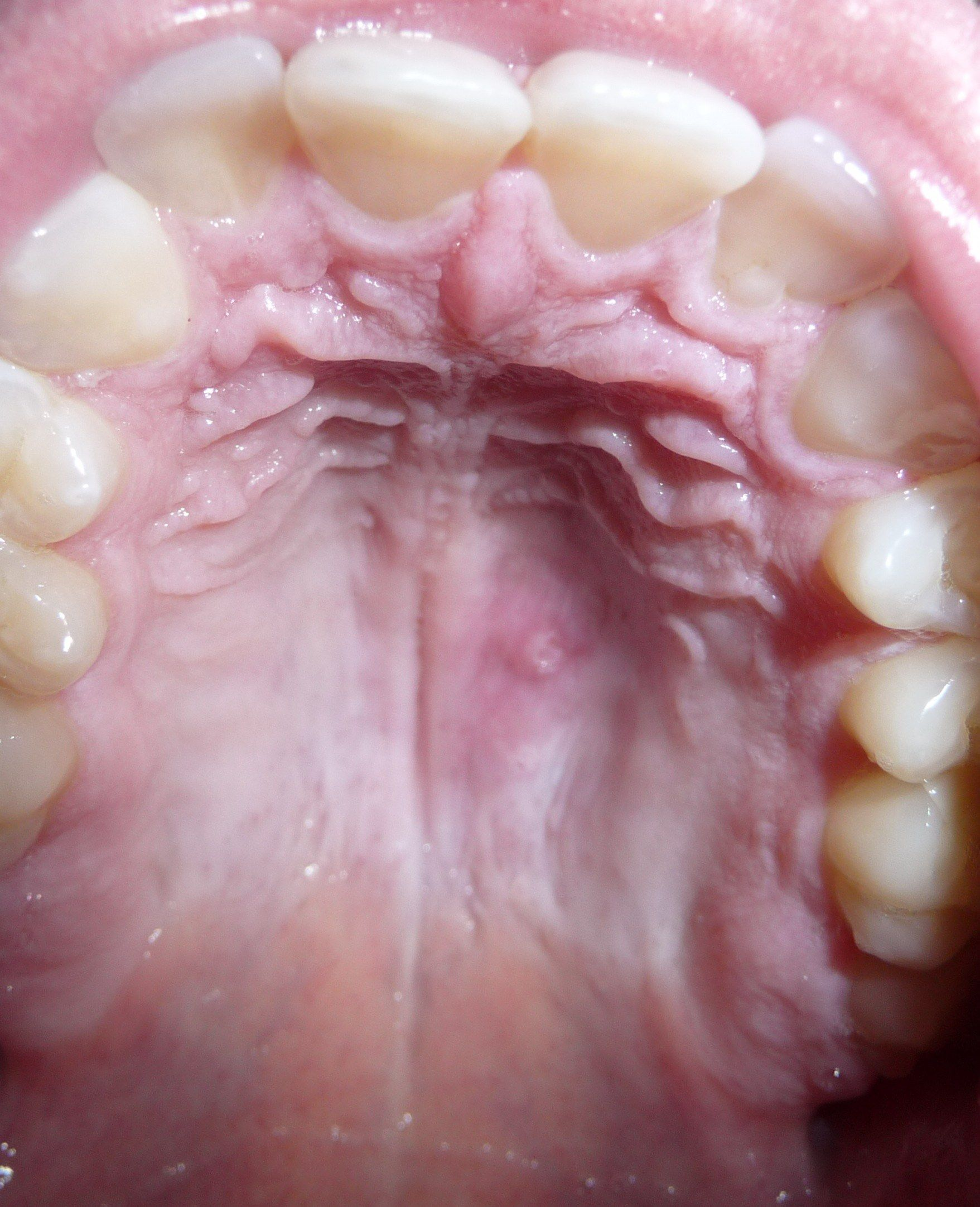roof of mouth - Google Search | Anatomy_Reference | Pinterest ...