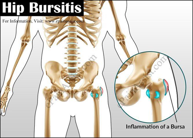 Hip Bursitis or Trochanteric Bursitis | Bursitis | Pinterest