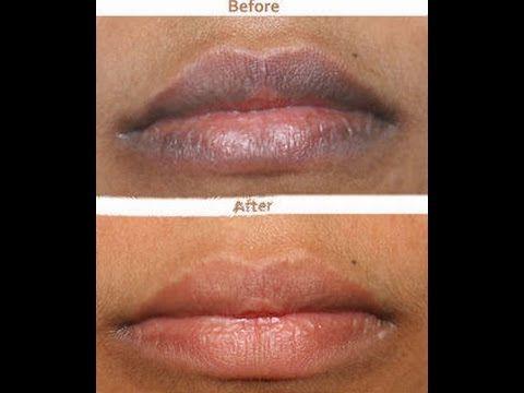 e13714efd7a72490c2f7be1a3df6cbe8 - How To Get Rid Of Dark Lips Caused By Smoking