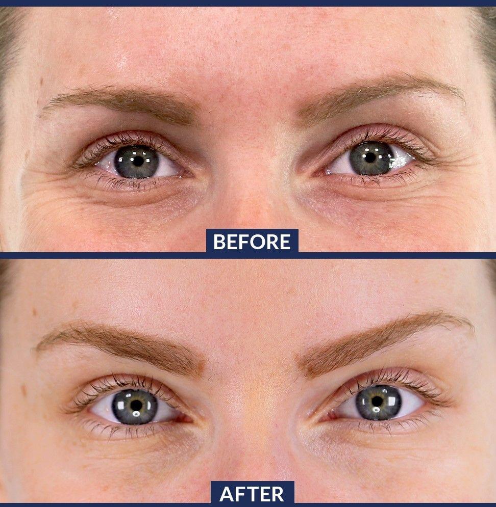 Eyebrow Lift See Natural Long Lasting Results By Dr Marina Shlifer Evolvehealthcarewoodlandhills Evolvehealthcare Brow Lift Botox Brow Lift Eyebrow Lift