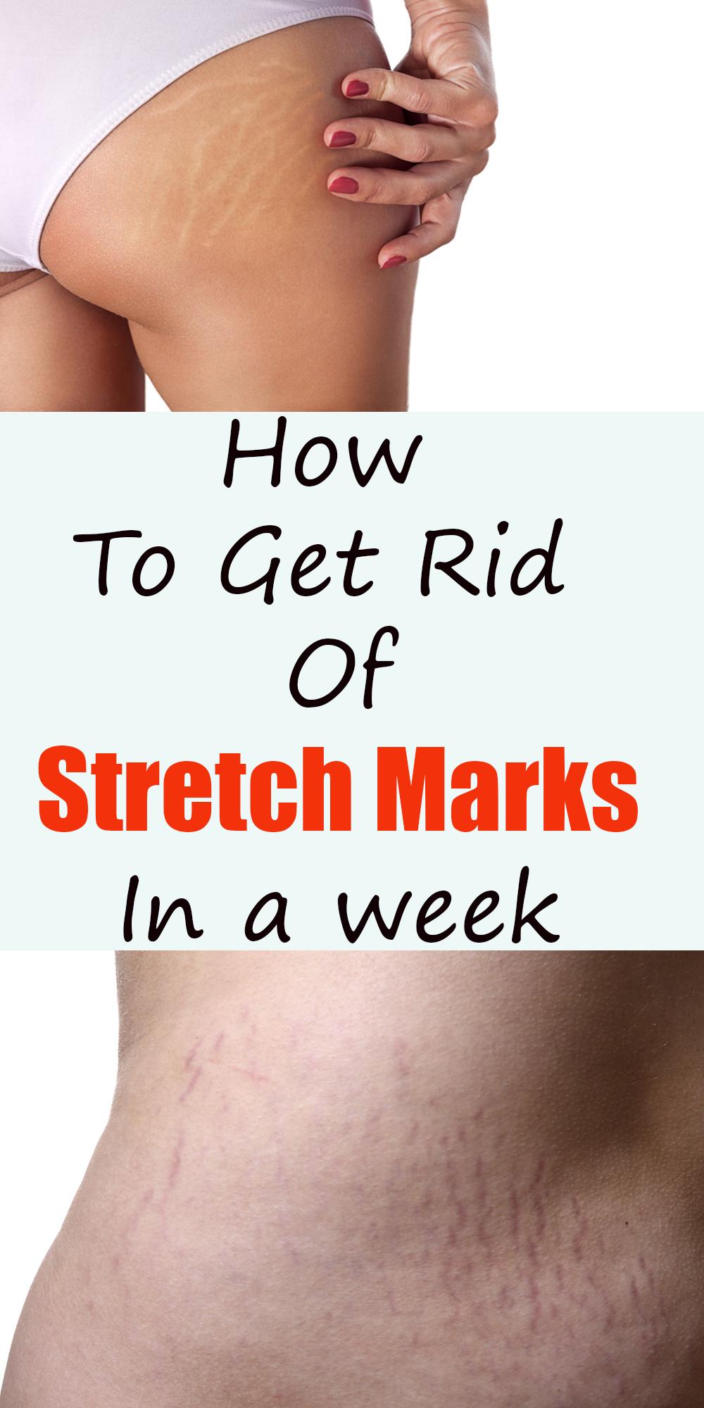 e13a5c42717ec76aacef263efad41e4c - How To Get Rid Of Stretch Marks Under Armpits
