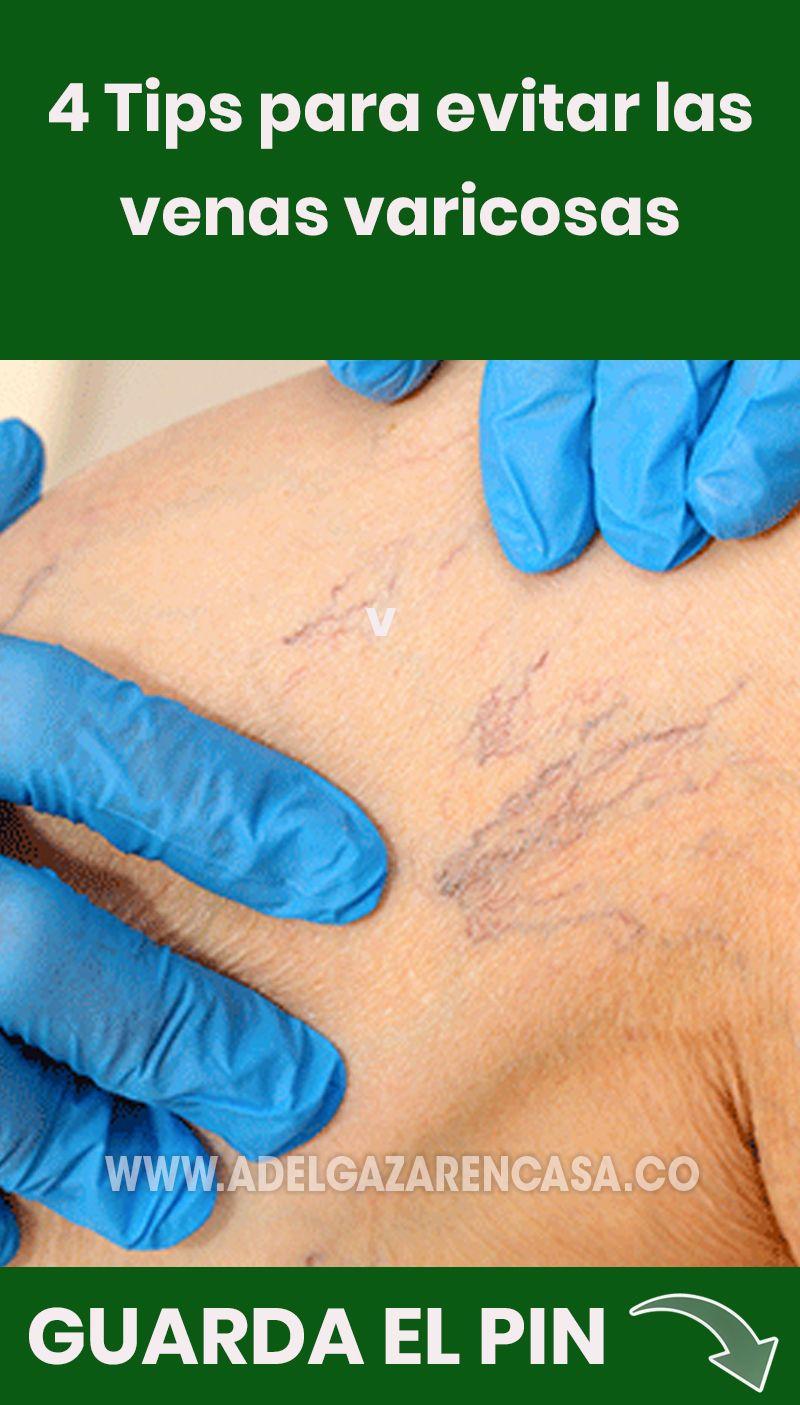 Crema Para Prevenir Las Varices Pin En Salud