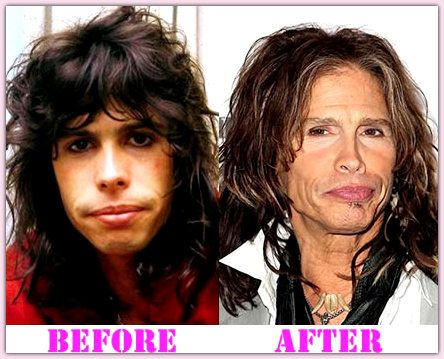 Steven Tyler Plastic Surgery Before And After