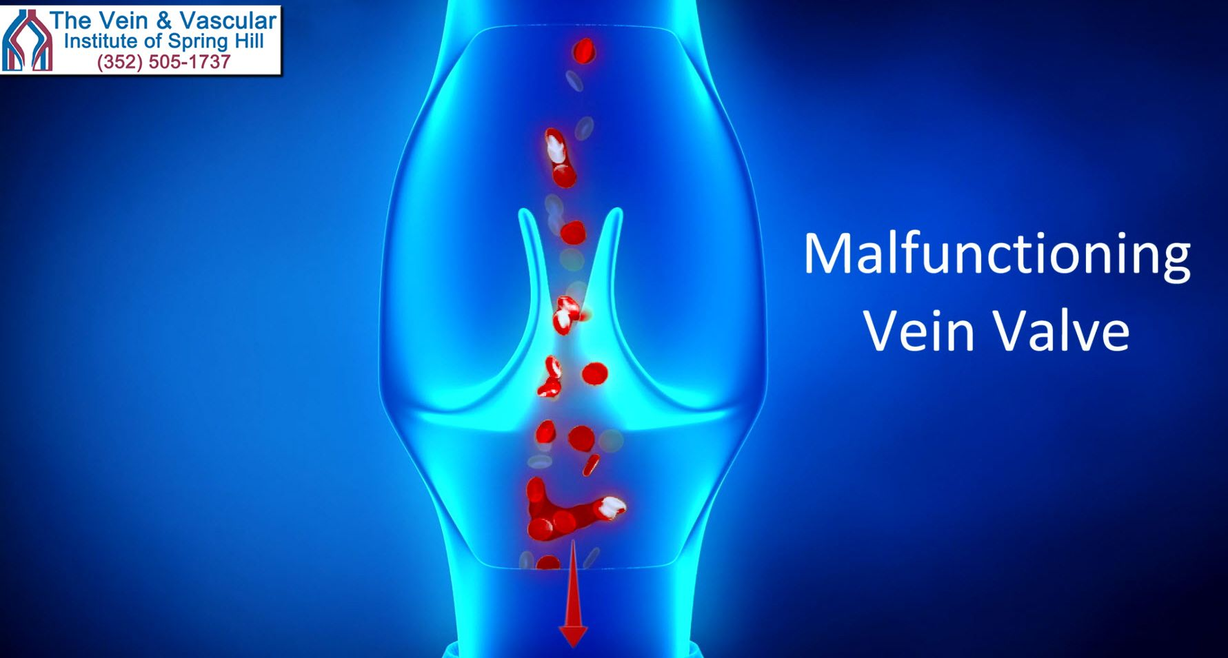 Venous Insufficiency Treatment In Spring Hill Fl